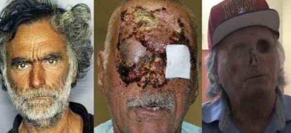 miami-zombie-victim-pictures-11-599x275.